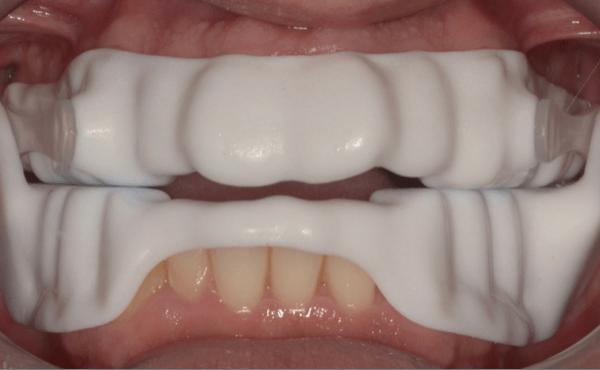 Dispositivo de Avanço Mandibular – Tratamento da Apneia do Sono
