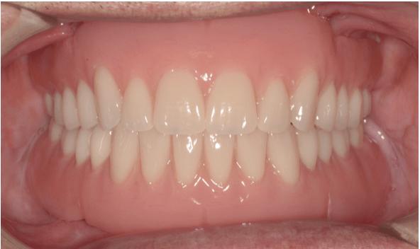 Prótese Total Removível, com sistema de retenção sobre implantes mandibular